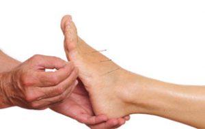 akupunktur i foten